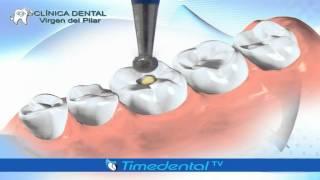 ¿Qué es una caries superficial? por Clínica Dental Virgen del Pilar