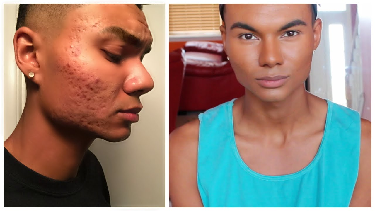 High End Foundation Routine For Men Acne Coverage Acne Scarring Coverage Youtube