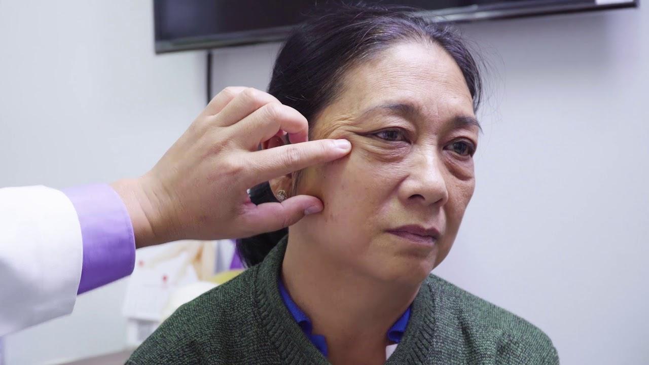 Căng da mặt Mesh Lift-Không sẹo-Không đau-Hiệu quả tuyệt đối-Bệnh viện JW