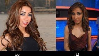 لن تصدق   شكل الفنانات المصريين والعرب قبل وبعد عمليات التجميل   سبحان مغير الأحوال