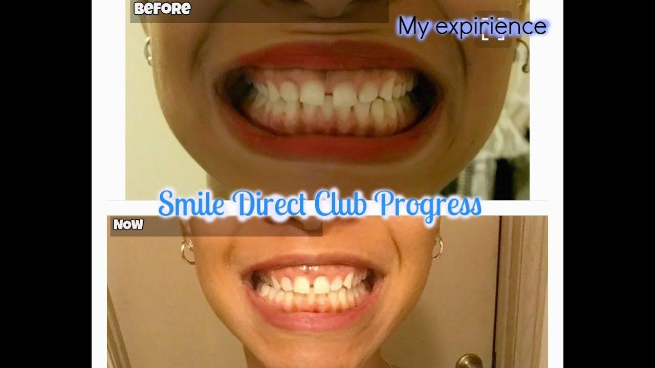 Smile direct club| Expirience and progress| 3D treatment ...