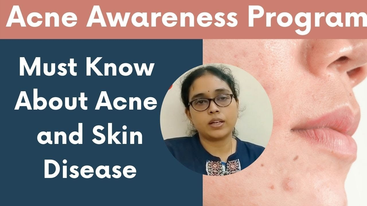 Must Know About Acne and Skin Disease | Acne Awareness Program