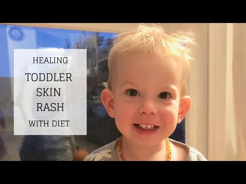 Healing Toddler Skin Rash with Diet | GAPS Update | Bumblebee Apothecary