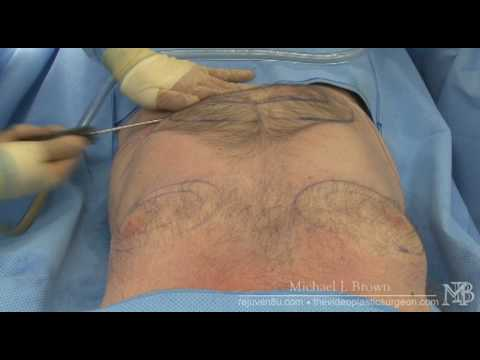 Ultrasonic liposuction of a man's chest and abdomen