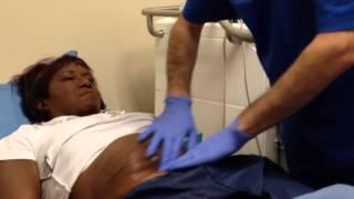 CoolSculpting procedure Elk Grove Medical Spa