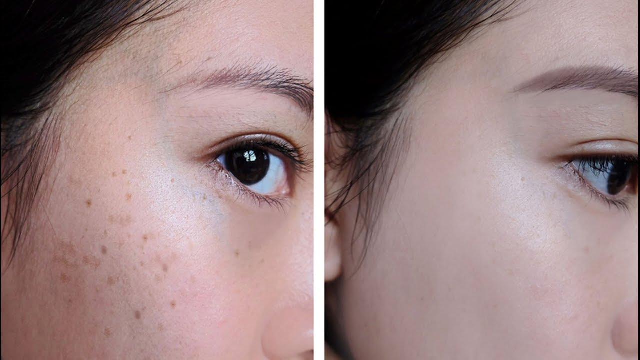 tratamientos para eliminar pecas y manchas dela cara