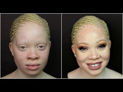 Amazing makeup transformation on Albino Skin