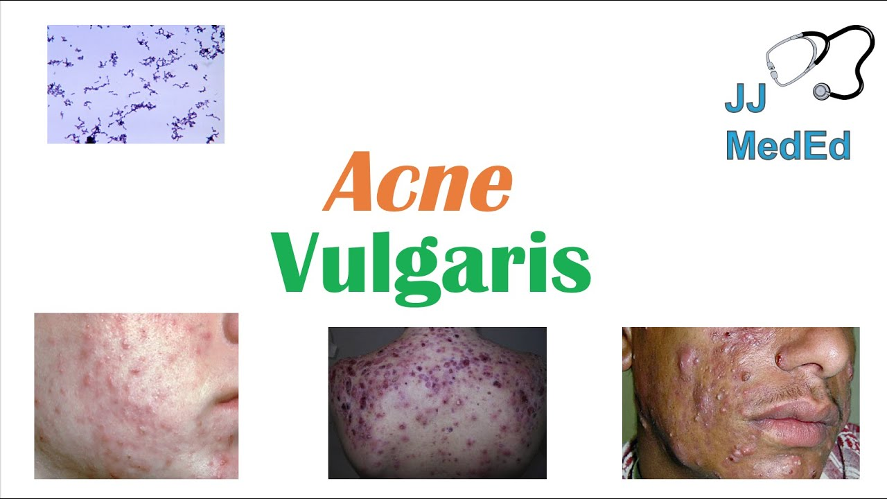 Acne Vulgaris Causes Pathogenesis Influencing Factors Diagnosis Treatment And Complications Youtube