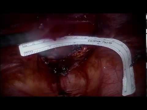 Robotic Incisional Hernia Surgery | Phasix Mesh