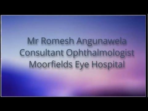 Moorfields Eye Hospital London Laser Eye Surgeon
