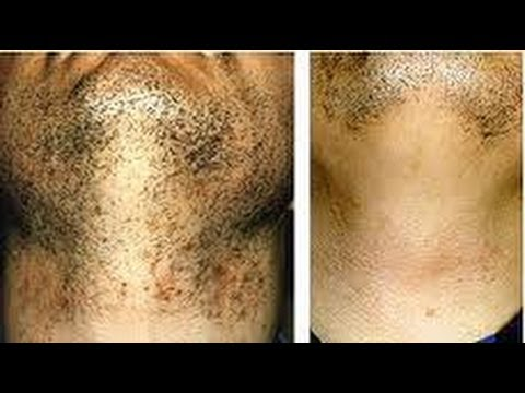 How To Treat Ingrown Hairs Particularly Black Skin