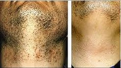 How To Treat Ingrown Hairs (Particularly, Black Skin)
