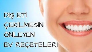 Diş Eti Çekilmesini Önleyen Ev Reçeteleri