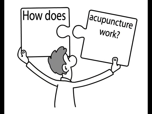 An Easy Way to Understand how Acupuncture Works to Heal the Body.