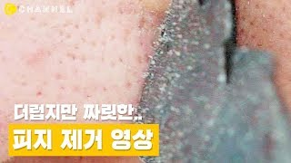 [뷰티] 짜릿한 피지 제거 영상! (feat.블랙헤드 종말템????) | 씨채널 코리아