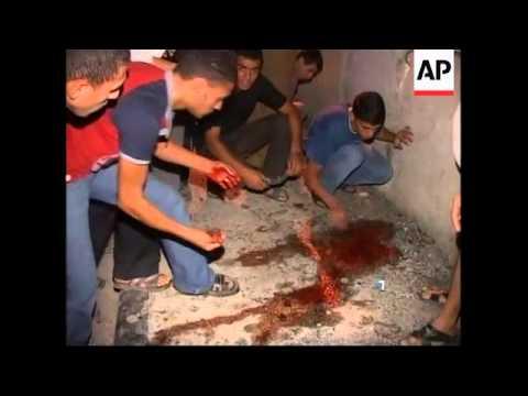 Scene and hospital after Israeli strike Hamas police station