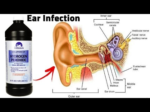 How To Get Rid Of An Ear Infection With Hydrogen Peroxide?