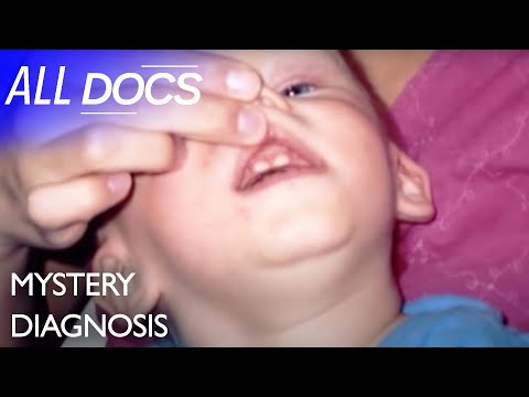 The Boy Who Bit Himself: Lesch Nyhan Syndrome | Medical Documentary | Reel Truth