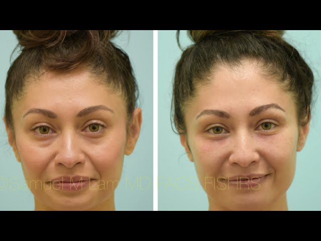 Dallas Lower Blepharoplasty and Fat Transfer Before and After
