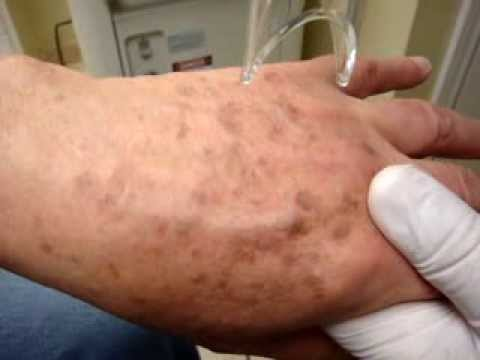 Pigmented Lesions (dark spots): Treatment with Qswitch Laser