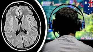 Gaming may increase your brain's gray matter - TomoNews