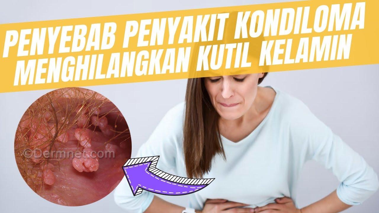 papiloma colonoscopia)