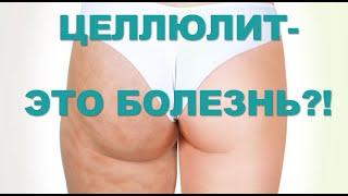 Целлюлит- БОЛЕЗНЬ? Стадии/ Профилактика/ Лечение/Советы врача-косметолога Светланы Юдиной.