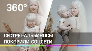 Сёстры-альбиносы из Казахстана покоряют соцсети необычной красотой