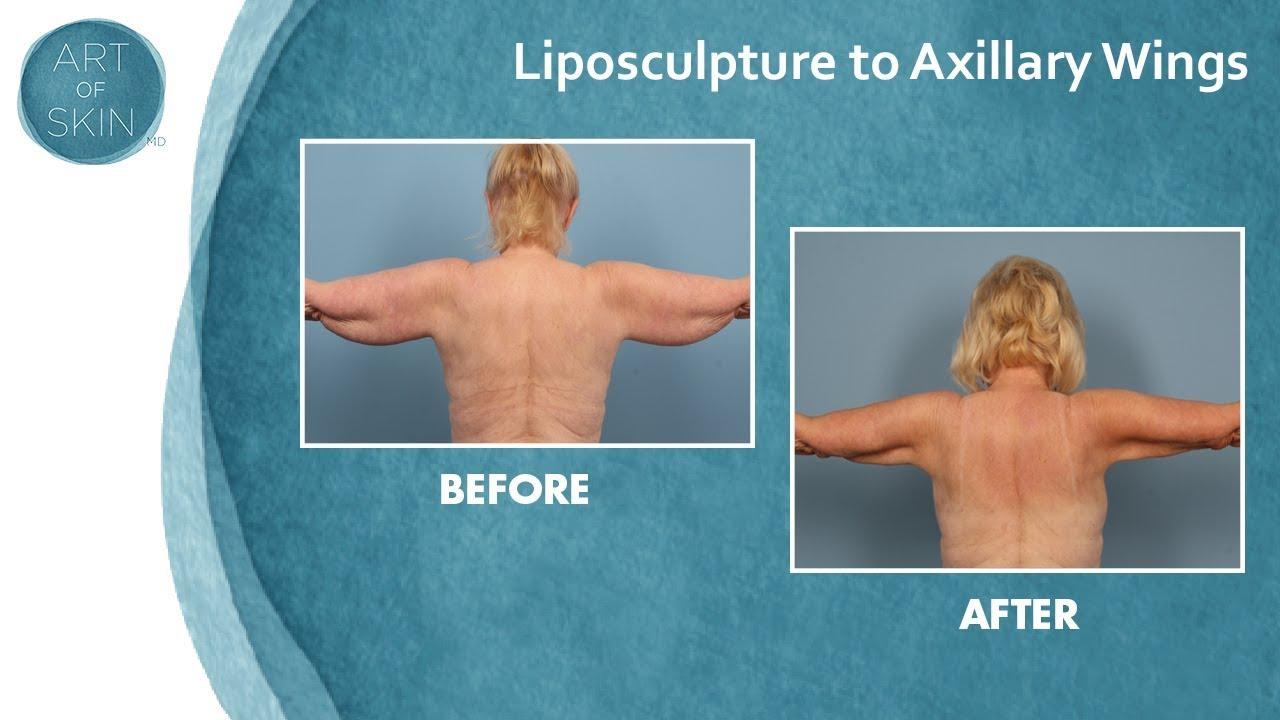 Congratulate, liposuction back fat bra