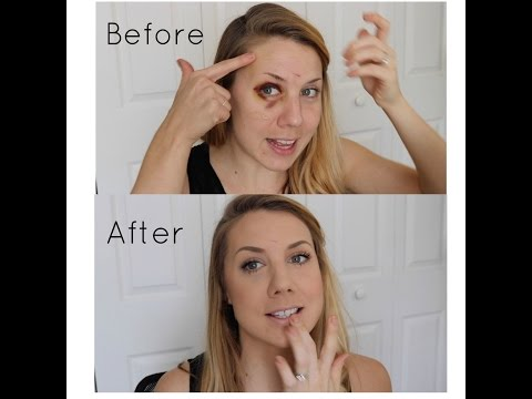 How to cover a black eye/shiner