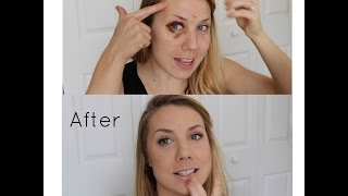 How to cover a black eye/shiner || Andrea Sawyer