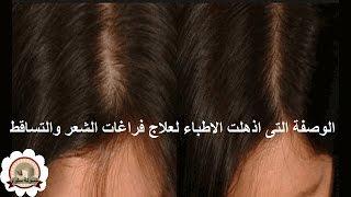 الوصفة التى اذهلت الاطباء لعلاج فراغات الشعر ووقف التساقط/وتحدى