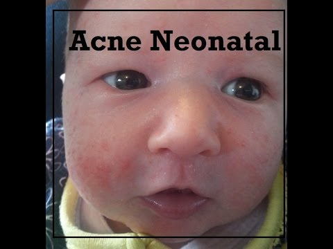 [Maternidade] Acne Neonatal - Dica para tratar!