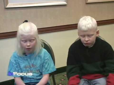 African Albinos on VOA's In Focus