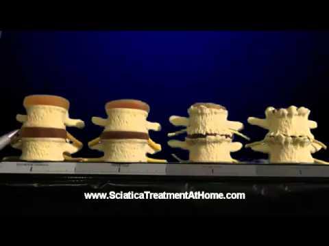 hqdefault - What Treatment For Sciatica