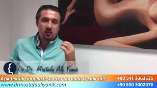 Op. Dr. Mustafa Ali Yanık açık teknik burun estetiği sonrası iz kalırmı ?