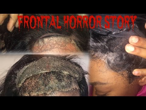 Lace Frontal HORROR STORY| Storytime