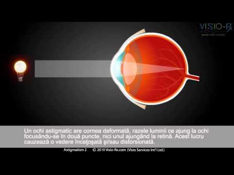 astigmatismul este totul despre viziune