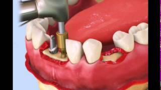 Стоматологическая клиника  АРБА ДЕНТ... Как вставляют имплант ?(Для тех, кто никак не представляет как вставят импланты., 2014-05-05T13:15:09.000Z)