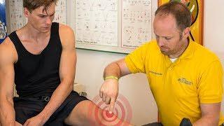Patellaspitzensyndrom: Behandlung (tapen) | Übungen | Ursachen