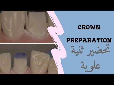 Download تحضير ثنية علوية  PFM Crown  Prep and animation for Dental Students