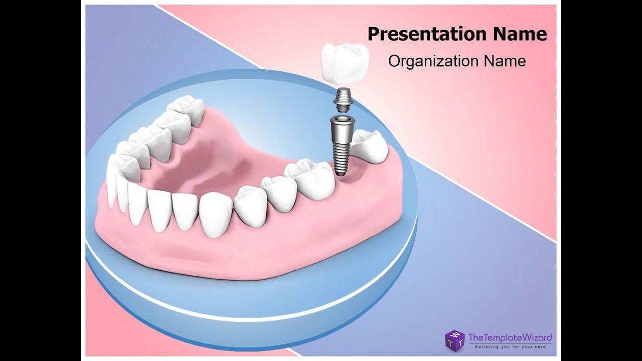 Dental implant powerpoint presentation template dental implant powerpoint presentation template thetemplatewizard youtube toneelgroepblik Image collections