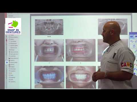 We can improve your quality of life with Snap in Dentures