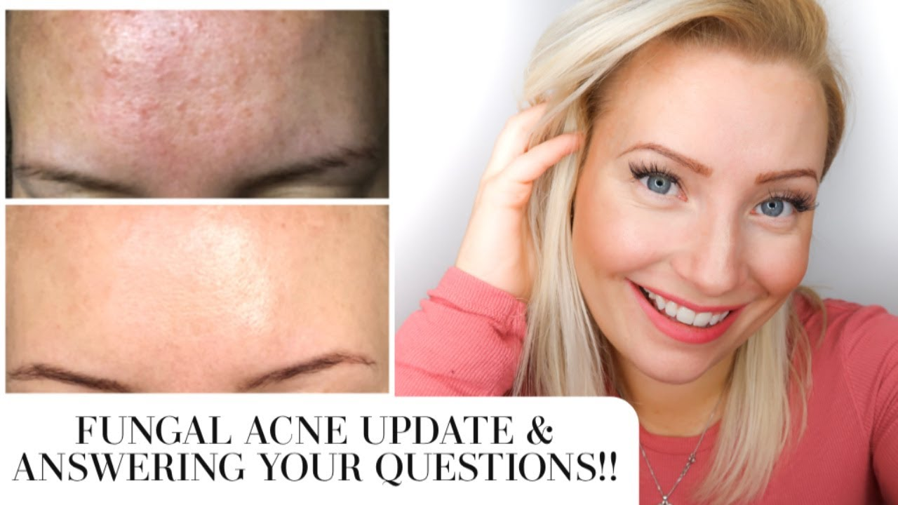 2 Month Update Get Rid Of Tiny Bumps On Forehead Fast How To Treat Fungal Acne Malassezia Youtube