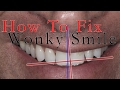 How to fix a Wonky Smile