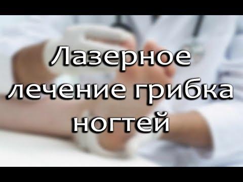 Лазерное лечение грибка ногтей: принцип действия, эффективность, возможные осложнения