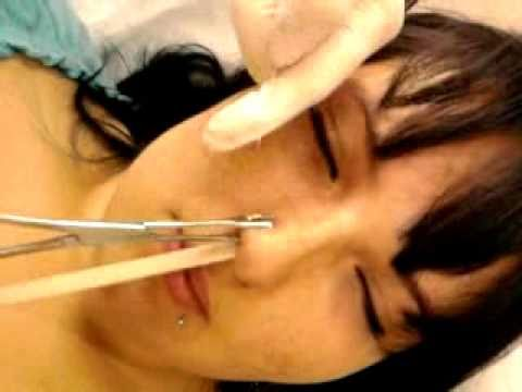 Piercing Au Nez De Mathilde Youtube