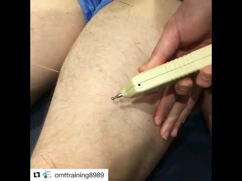 Electro acupuncture therapy for the hamstrings