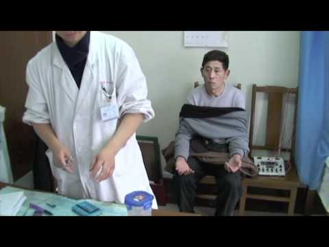 Acupuncture Treatment in Shanghai China thumbnail