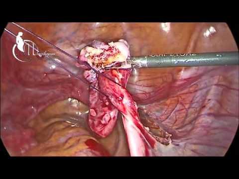 laparoscopic adnexectomy in 46,XY gonadal dysgenesis (Swyer syndrome)